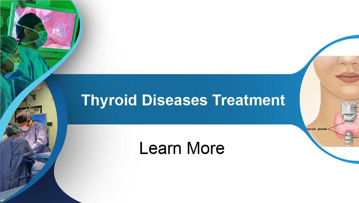 Thyroid Diseases Treatment